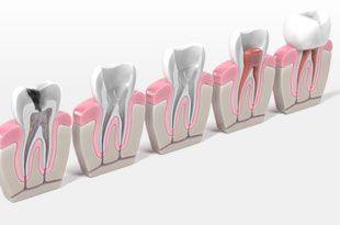 home-endodontics